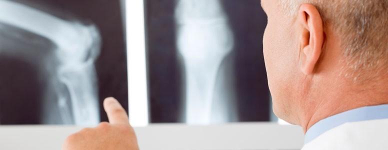 دیابت باعث افزایش خطر شکستگی استخوان است